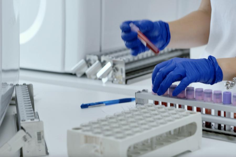 Testare RT-PCR